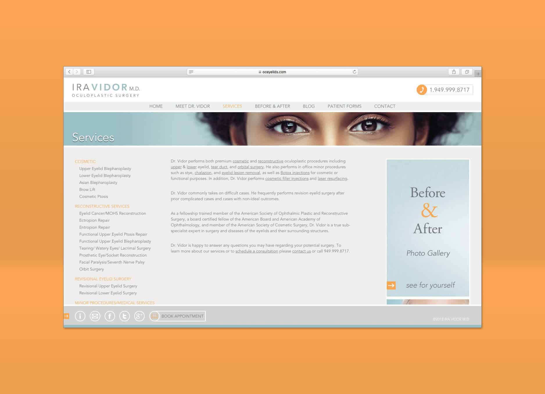 oc eyelid services